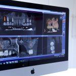 LideaL-KAISER_WAIBEL-Frame-LEISTUNGEN-3D-IMPLANTAT-PLANUNG-03